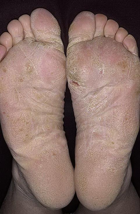 Как вылечить грибок на ступне ноги